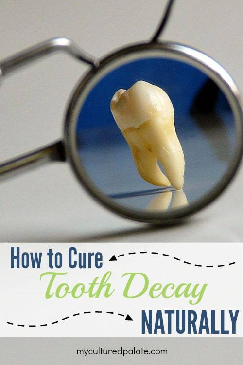 Curing Tooth Decay