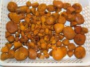 Gallstones - pigment stones 180