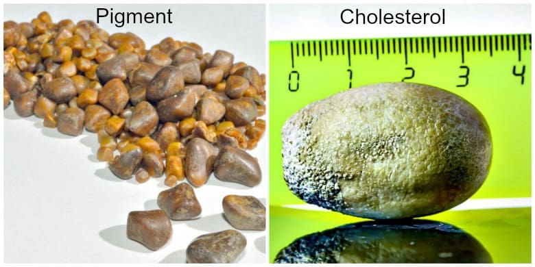 Pigment and Cholesterol gallstones shown side by side