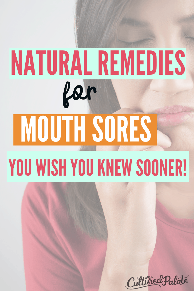 Woman with mouth pain shown with text overlay from the post Natural Remedies for Mouth Pain.