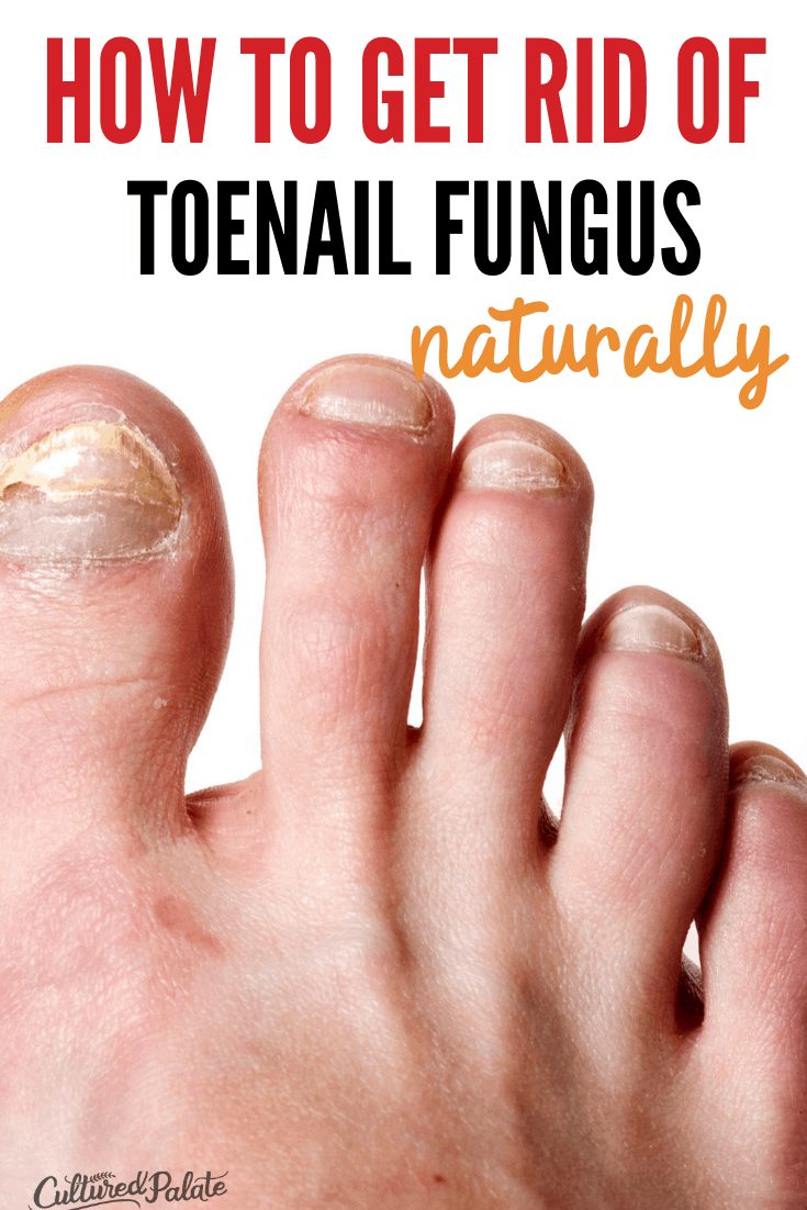 Close up image of a foot with toenail fungus on the toes.