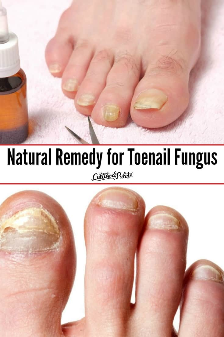 Two images of toes with toenail fungus on the nails.