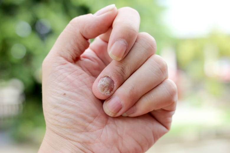 Natural Remedy for Toenail Fungus showing it is not just on toes but fingernail fungus too.