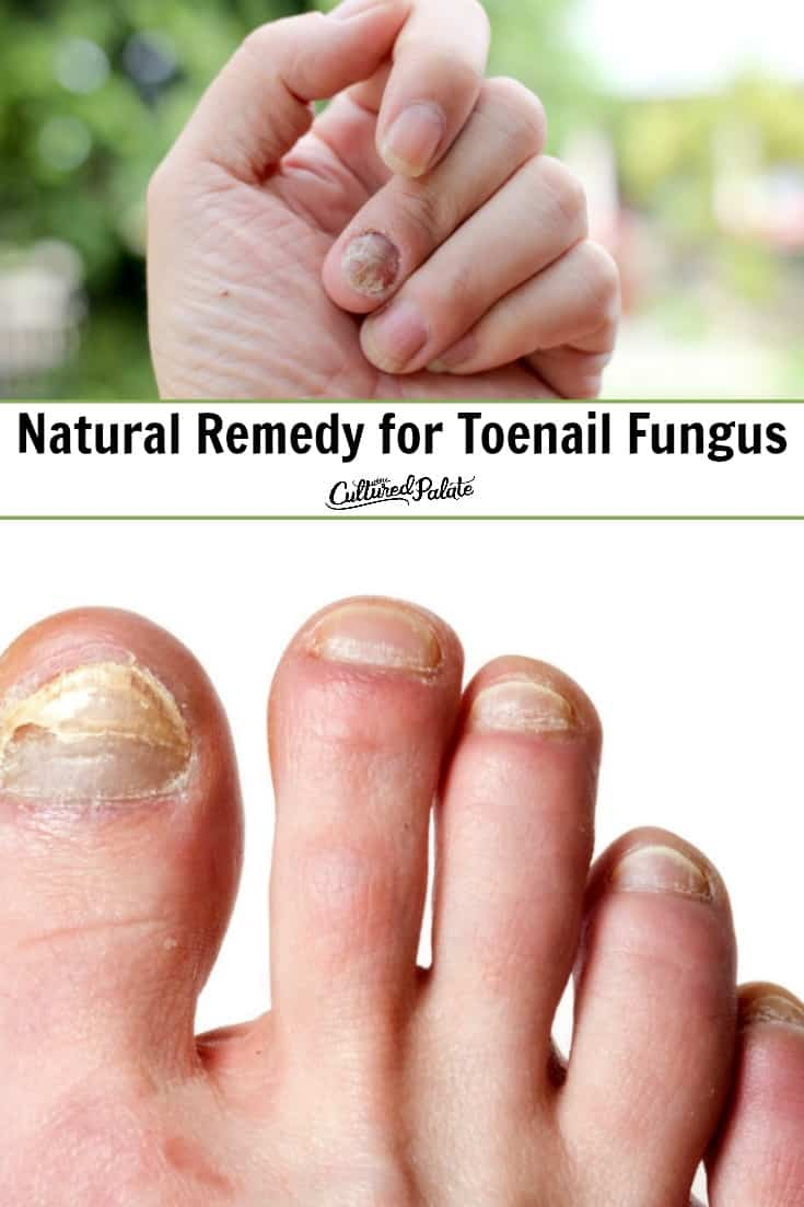 """Fingernail fungus and toenail fungus shown with text overlay, 'Natural Remedy for Toenail Fungus""""."""