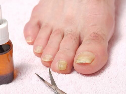 Toenail fungus shown of male foot with clippers and a bottle for Natural Remedy for Toenail Fungus